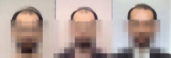 証明写真で見る頭髪の変化_20080304