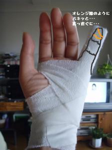 20090302骨折