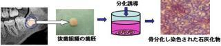 間葉系幹細胞の単離