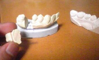 歯型分解可能です