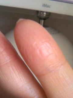 毒が蓄積されているしわしわの指