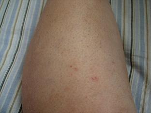 10月13日の膝下