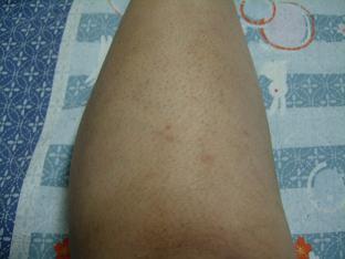2008年10月22日膝下