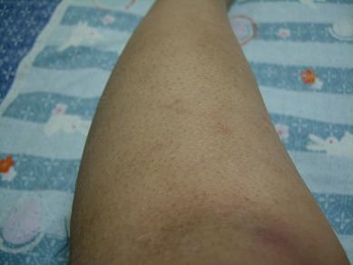 膝下5回目 6日後の写真