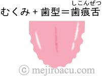 歯痕舌 舌診 中医学