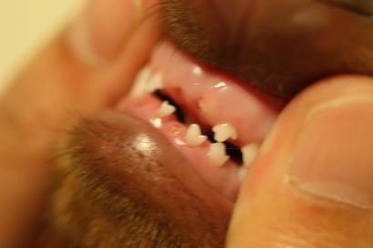歯がもげた