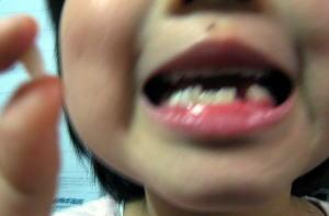 アスミ歯.jpg