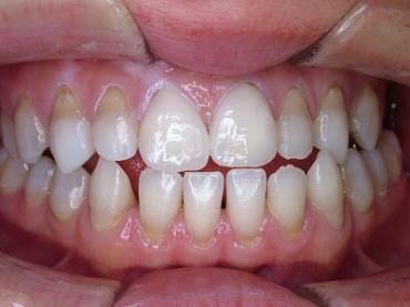 俺の歯並び完全修正写真画像