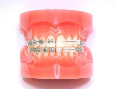 矯正中の歯!完全修正写真画像