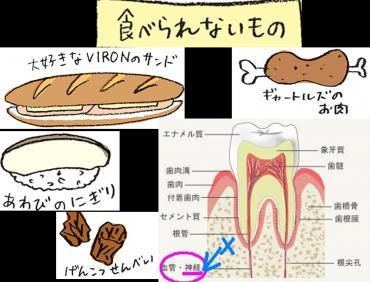 歯の矯正すると食べにくいもの完全修正写真画像