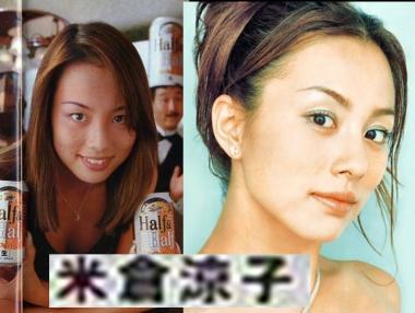 完全無修正:米倉涼子の整形疑惑写真