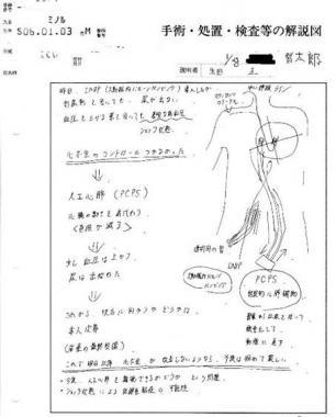 静岡東部医療センター循環器科医の手術 処置 検査等の解説図:完全無修正画像
