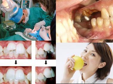 インプラント(人工歯根)違法治療:完全無修正画像