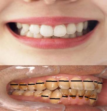 歯ミガキの仕方が悪くて歯槽膿漏に:完全無修正写真