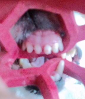歯のチェック